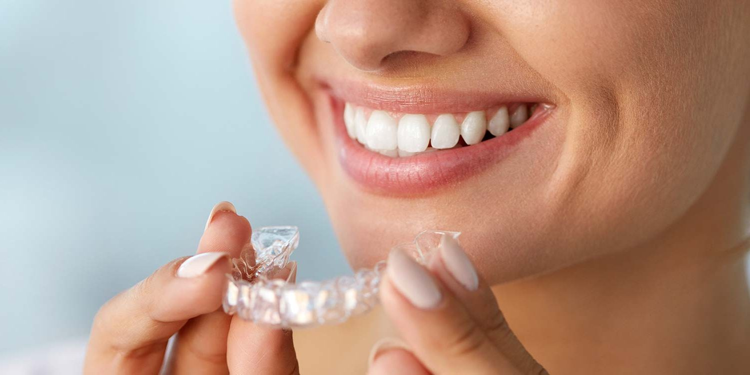 Invisalign in Oxon Hill MD