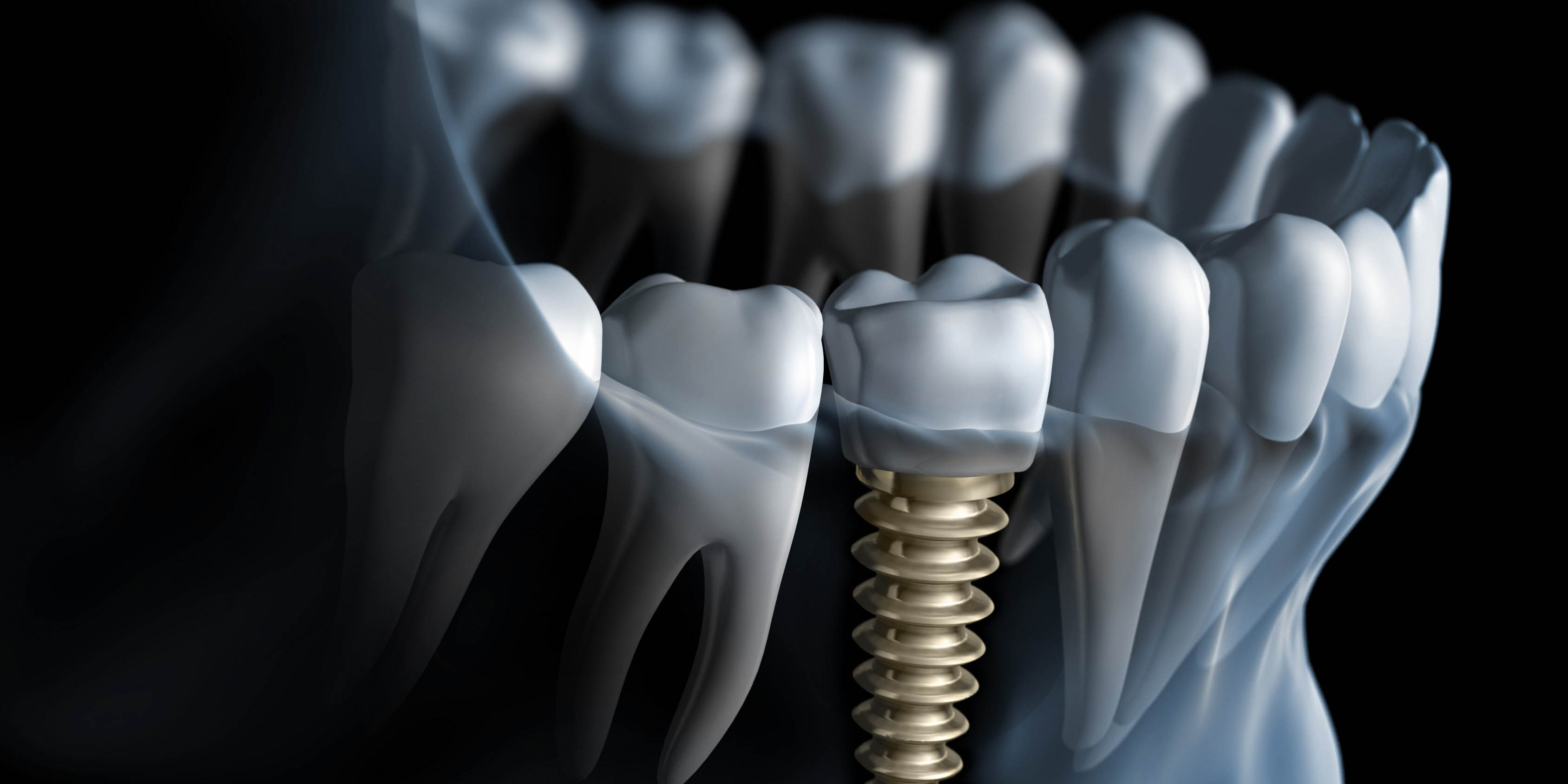 Dental Implants in Oxon Hill MD